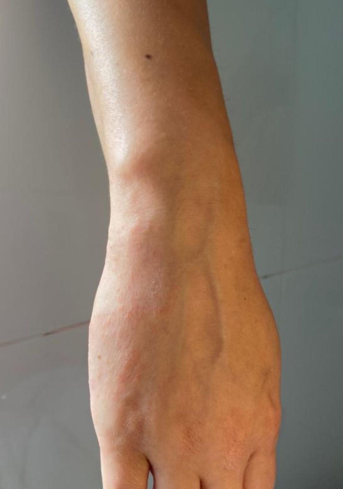 natuurlijke huidverzorging eczeem